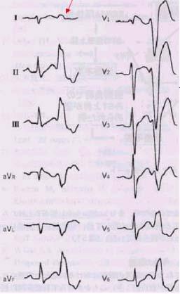 10. 右室流出路起源の心室性期外収縮の多発、 11. V1誘導のS波の幅が広いこと、など。 以