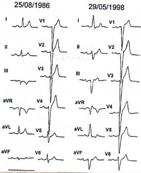 「脚ブロック」 「IVCD」 「二枝ブロック」 「分枝ブロック」 「WPW症候群」 「非特異的心室内伝導障害」 「障害」 「心室」 「伝導」 「伝導障害」 「害」