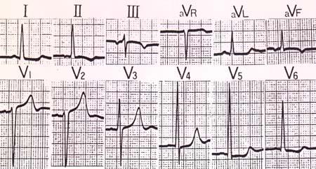 (4) 房室接合部性調律の標準誘導心電図波形 心電図所見: �U、�V,aVF誘導で陰性P波を示